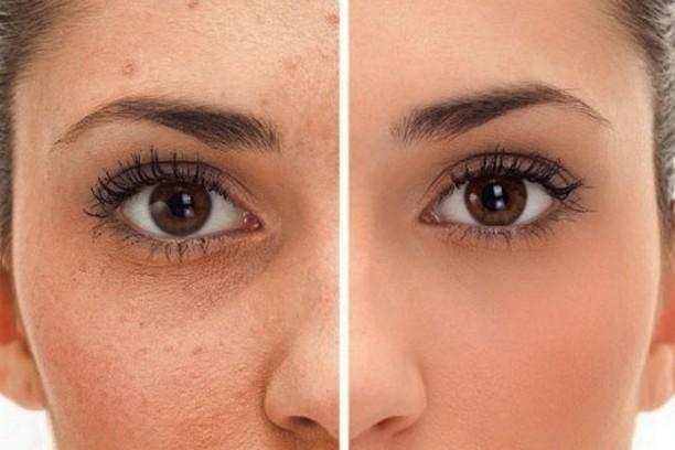Acne e Imperfecciones